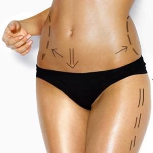 גוף אישה לפני ניתוח פלסטי