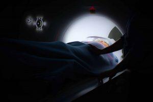 MRI לאחר הזרקת חומרי מילוי לפנים