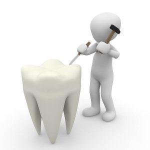 השתלת שיניים ביום אחד- ניתוח אסתטי בלבד או משפר איכות חיים?